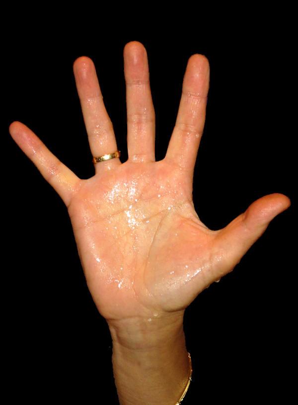 transpiration excessive des mains et des pieds